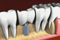 Implantati