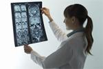 Neurološke terapije i dijagnostika